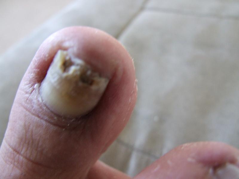 Pourquoi sloyatsya les ongles à bras le traitement