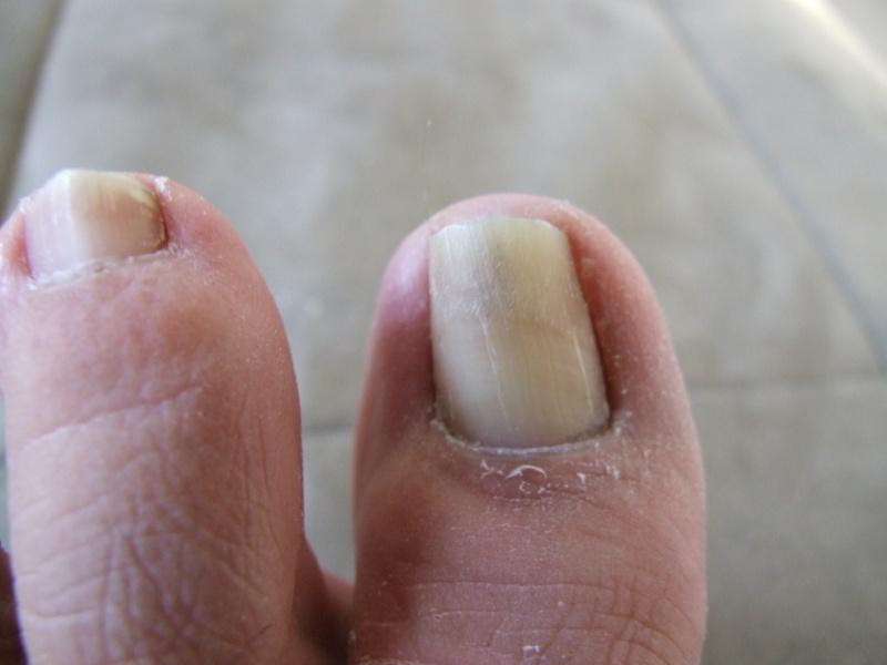 ongles des pieds qui noircissent