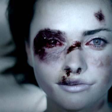 Femme violentée