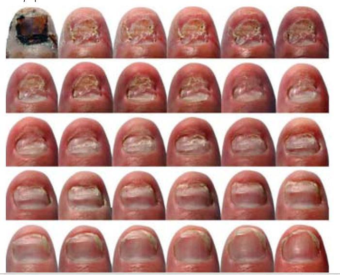 Asd 3 per trattamento di un fungo di unghie